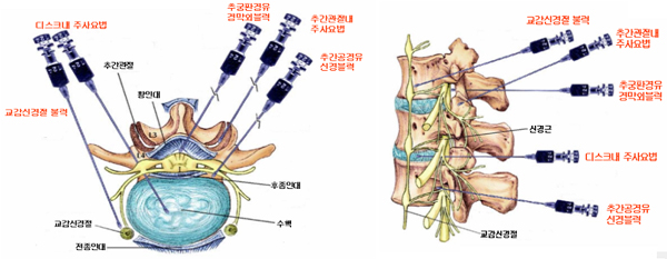 lumbar epidural steroid injection process